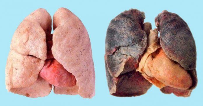 Մաքրե՝ք ձեր թոքերը ընդամենը 3 օրում, կարդան միայն ծխողները