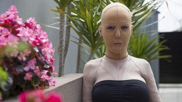 Ահա թե որքան դաժան կարող է լինել դավաճանված կնոջ խանդը․Այս կնոջ դեմքը վառվեց խանդի պատճառով, միայն տեսեք ինչպիսին է նա հիմա․․․