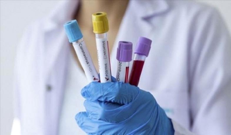 Հուլիսի 16-ի, ժամը 11:00-ի դրությամբ հաստատված  կորոնավիրուսային հիվանդության նոր տվյալներ