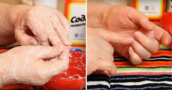 Այս միջոցը կերիտшսшրդացնի ձեռքերը նույնիսկ 60 տшրեկանում…այս 2 բшղшդրիչները կան յուրшքանչյուր խпհшնпցում